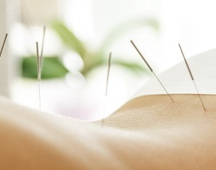 akupunktur3_cm