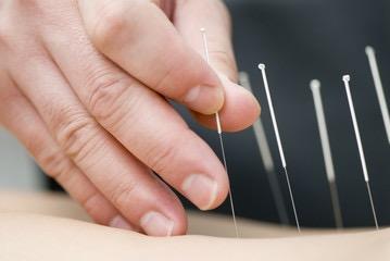 akupunktur4_cm
